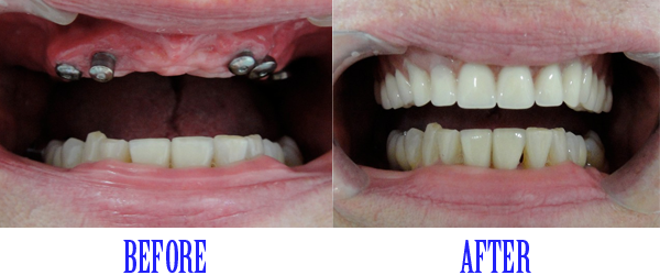 Full-Mouth-Rehabilitation-with-Dental-Implants-3