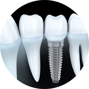 Guided Implant Surgery in Kolkata