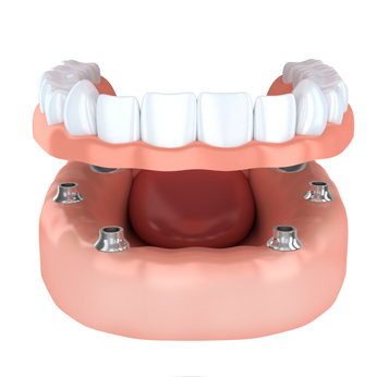 all on four implants of dental implants cost is affordable