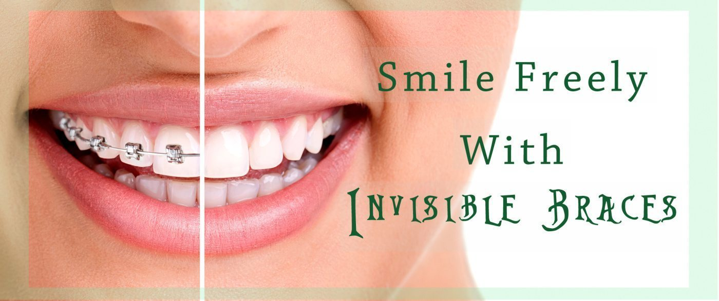 Demand for invisible braces has emerged greatly