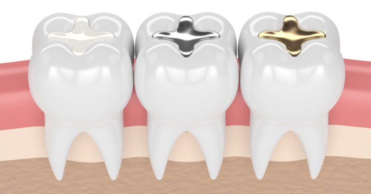 Cavity filling is necessary to prevent situations from getting worse