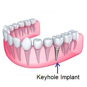 Keyhole implants better than Dental implants