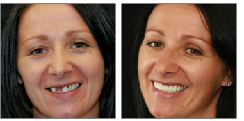 Reconstruct your Damaged teeth, bring life to them