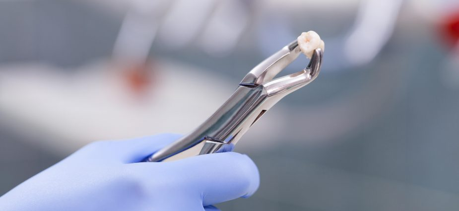 Reasons for Tooth Extraction , tooth extraction cost