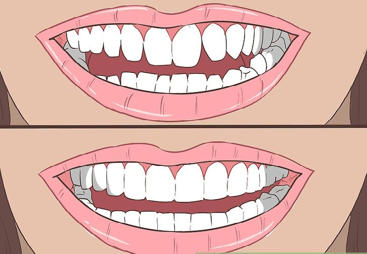 Teeth straightening- Fix crooked teeth without braces