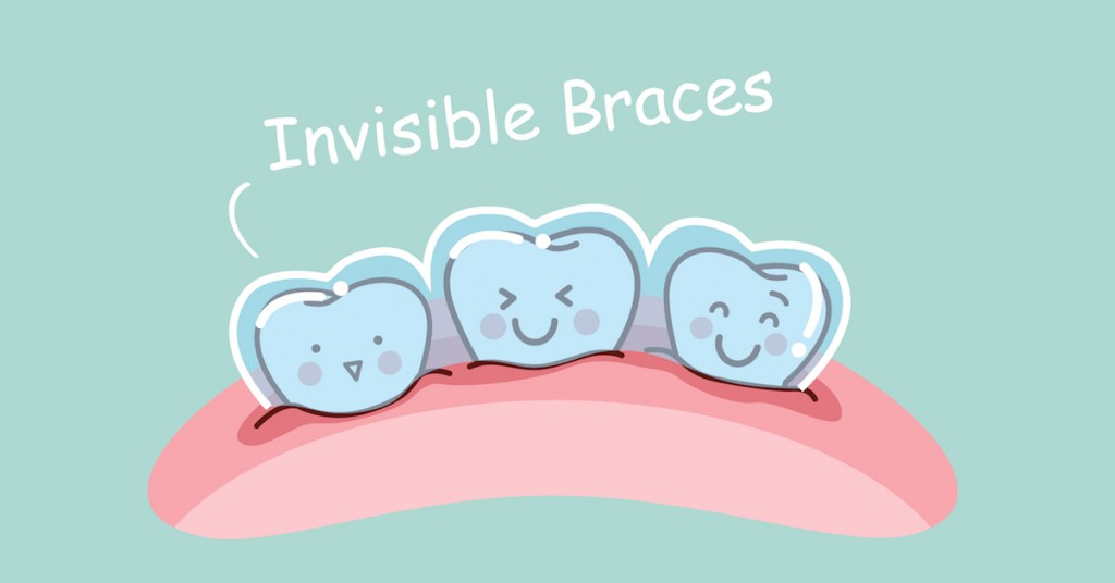 Do invisible braces work?