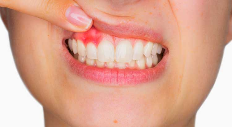 Gum disease and its causes.