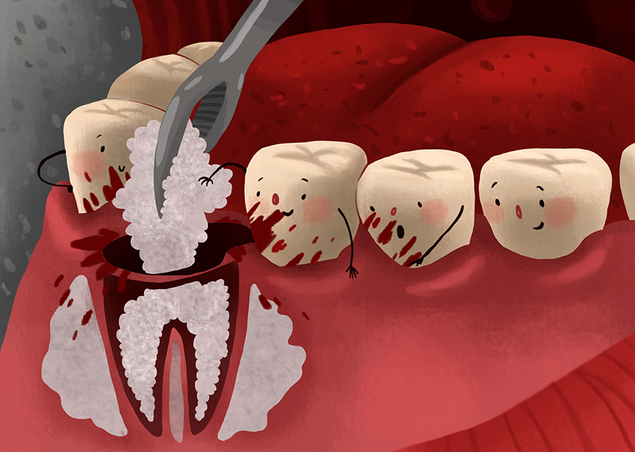 Advantages of Bone Grafting | Best Dental Implants Clinic in Howrah