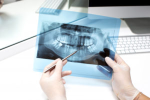 Are Dental xrays safe during pregnancy Best Dental Clinic in Kolkata