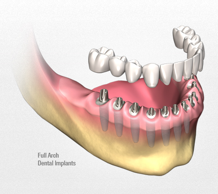 dental-implants-rotate3
