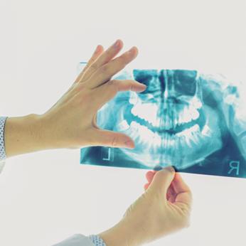 top dentist kolkata , bone grafting dental