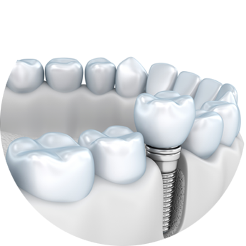 Full mouth implants by best best implantologist in kolkata