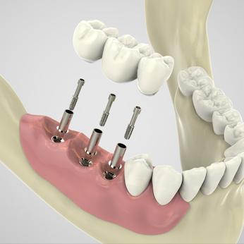 keyhole implant by top dentist kolkata