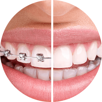 Orthodontic in Kolkata