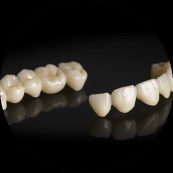 bridge dentistry