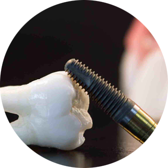 best dental implant clinic in india , dental implant clinic near me