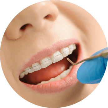 ceramic dental cap kolkata