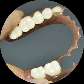 Full Mouth Denture
