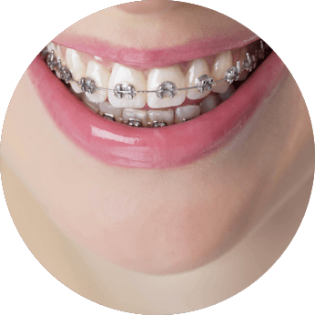 metal brackets orthodontics