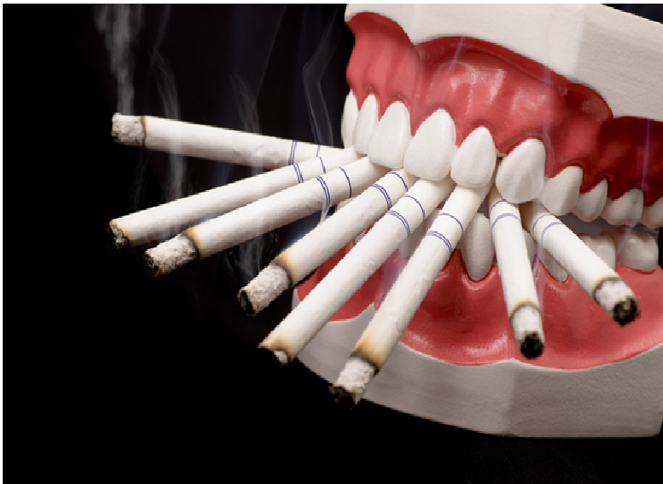 Harmful Effects of Tobacco on Oral Health