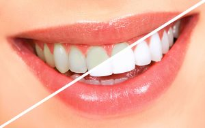 teeth-whitening at Aesthetica Dental Implant Clinic