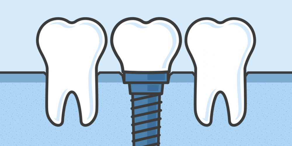 WHY SHOULD YOU CHOOSE DENTAL IMPLANTS?