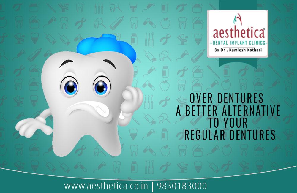 Over Dentures