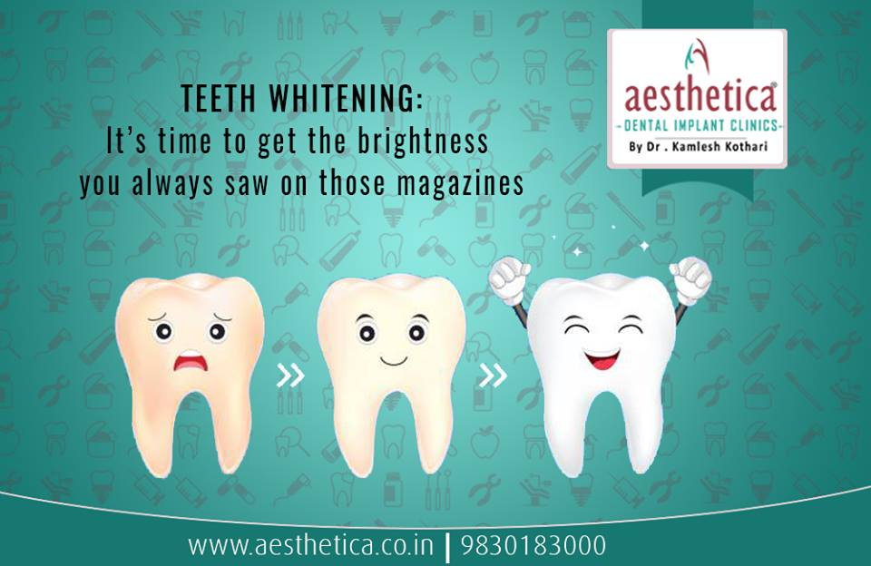 Myths Related to Whitening of Teeth by Dentist