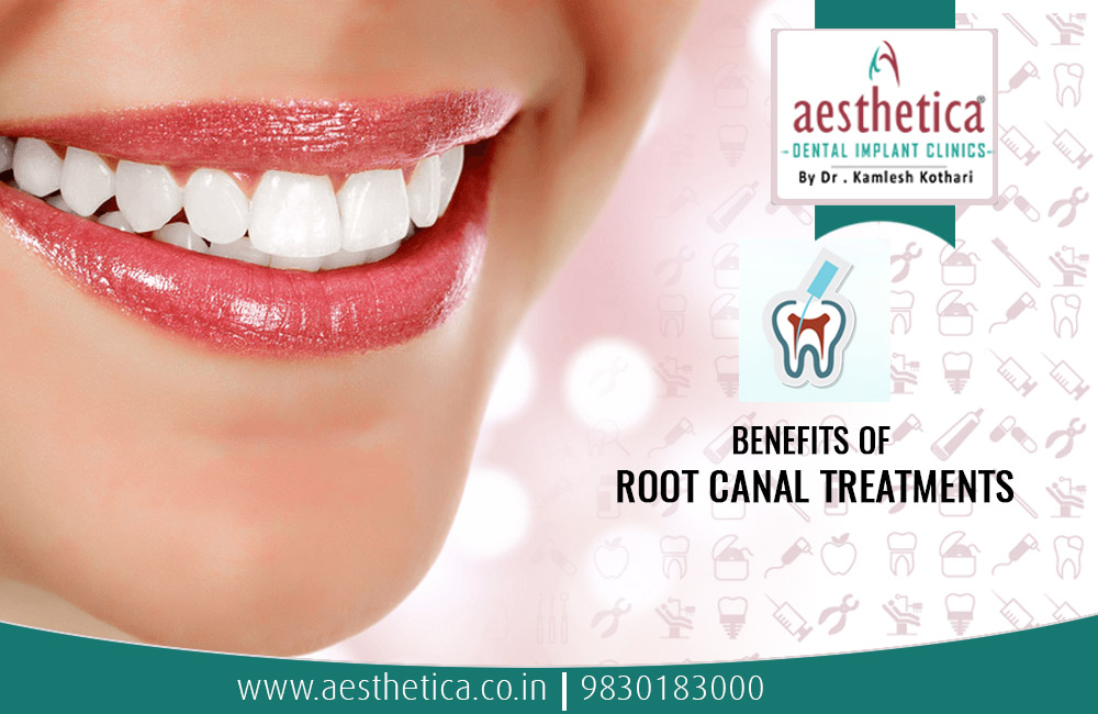 benefits of root canal treatment , open root canal