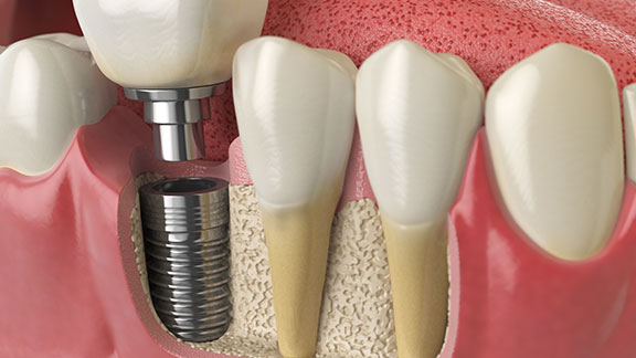Restore lost bone with the help of Bone Grafting