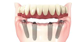 Full mouth Dental Implant – Hustle free permanent solution