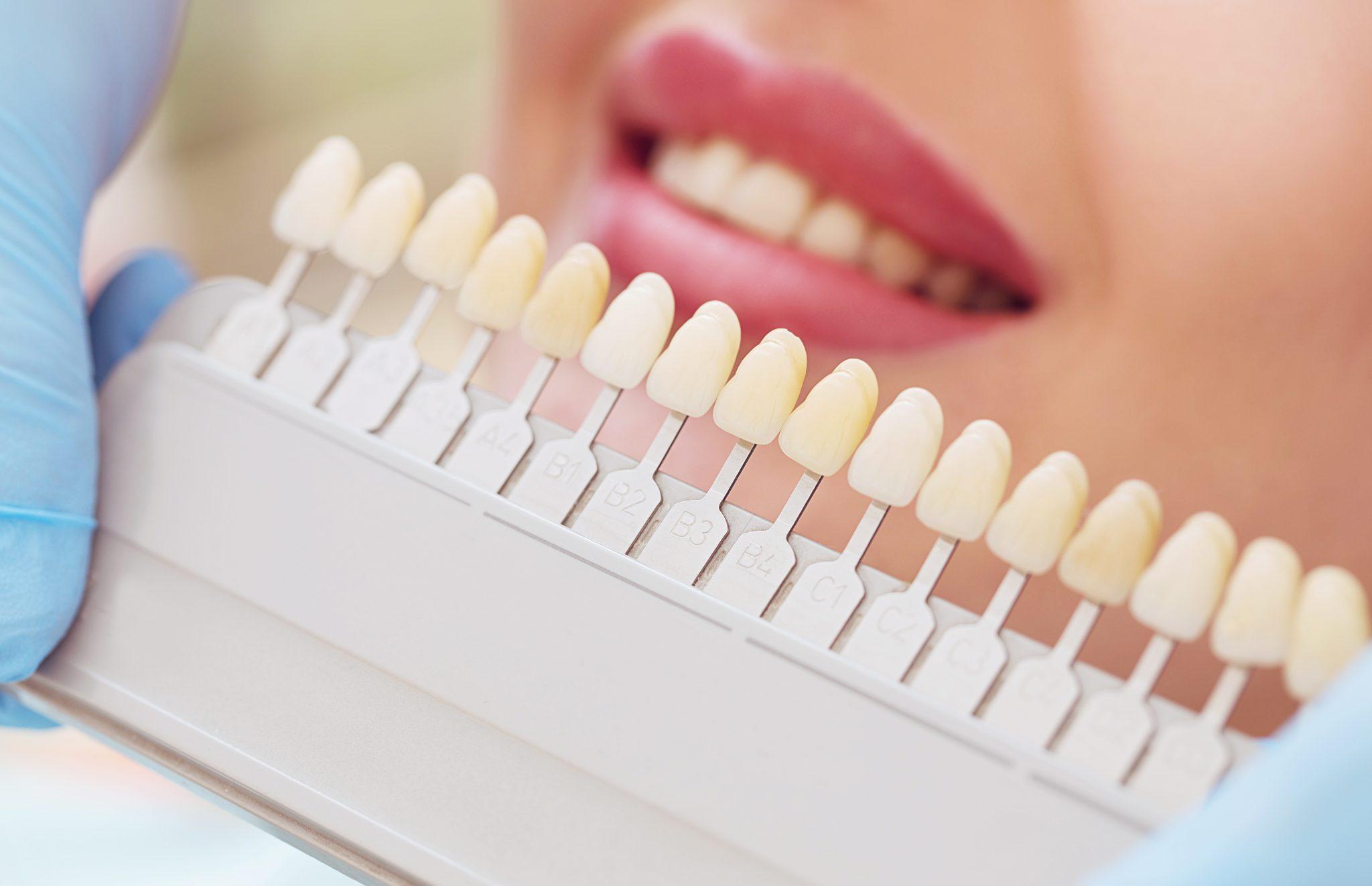 Dental laminates and veneers