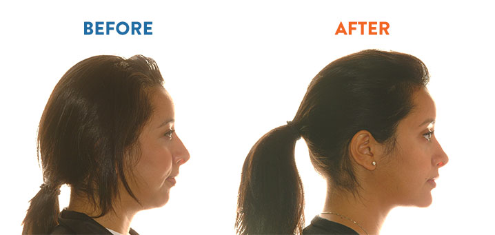 Face problems and discomforts in meeting of the upper and lower teeth? Get a Jaw correction surgery done.