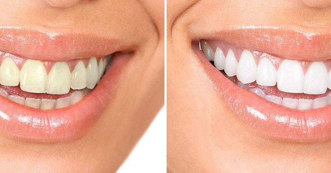 Reasons to get your teeth cleaned by Ultrasonic Cleaning