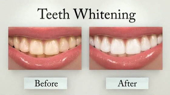 Need a teeth whitening session? Know some facts beforehand.