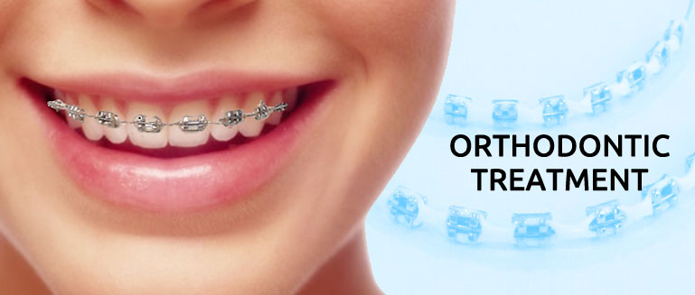 Orthodontic treatment - Improve your dental health, change your facial appearance for the best.