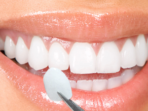 All about Dental Veneers