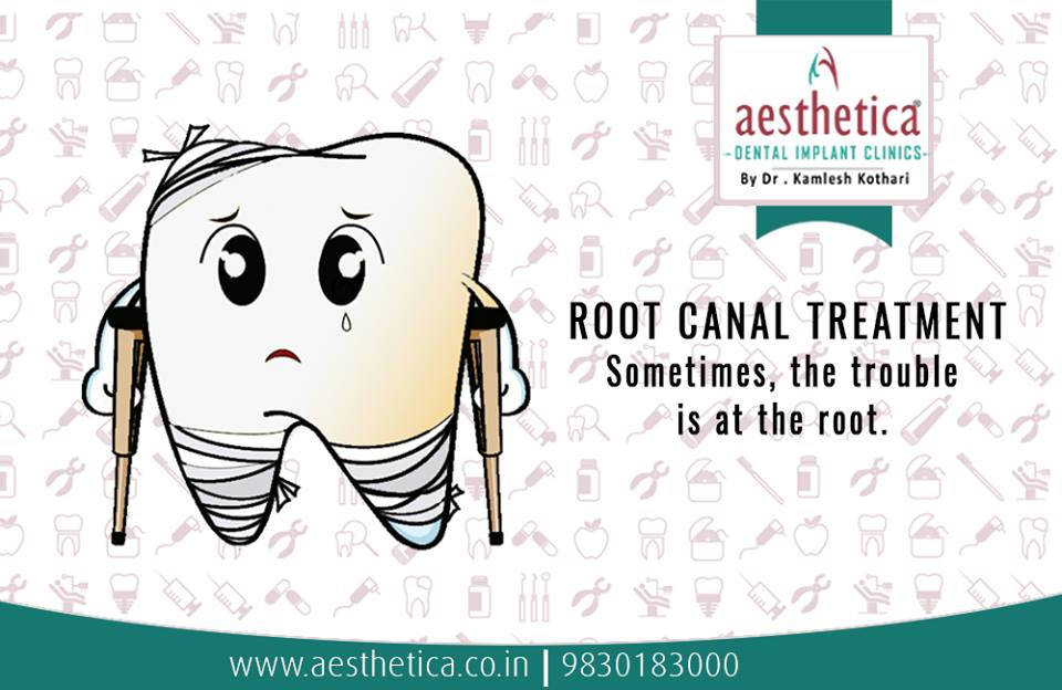 Facts About Root Canal Treatments | Aesthetica