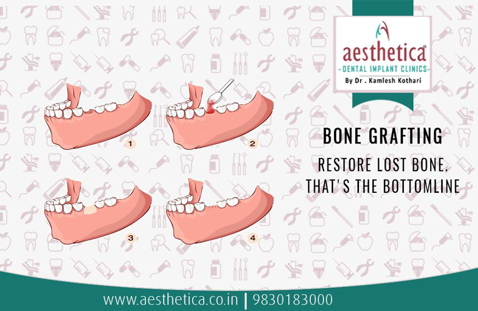 Dental Bone Grafting | Aesthetica