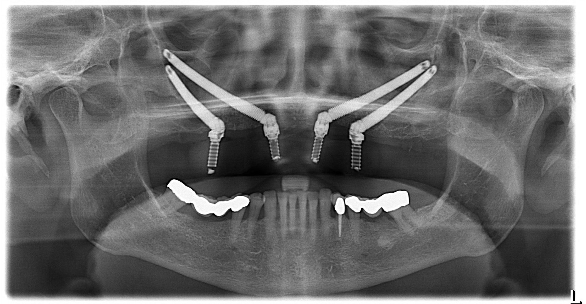 Why you might need zygomatic implants?