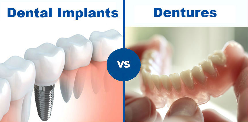 Dental Implant vs Dentures: Which is best for you?