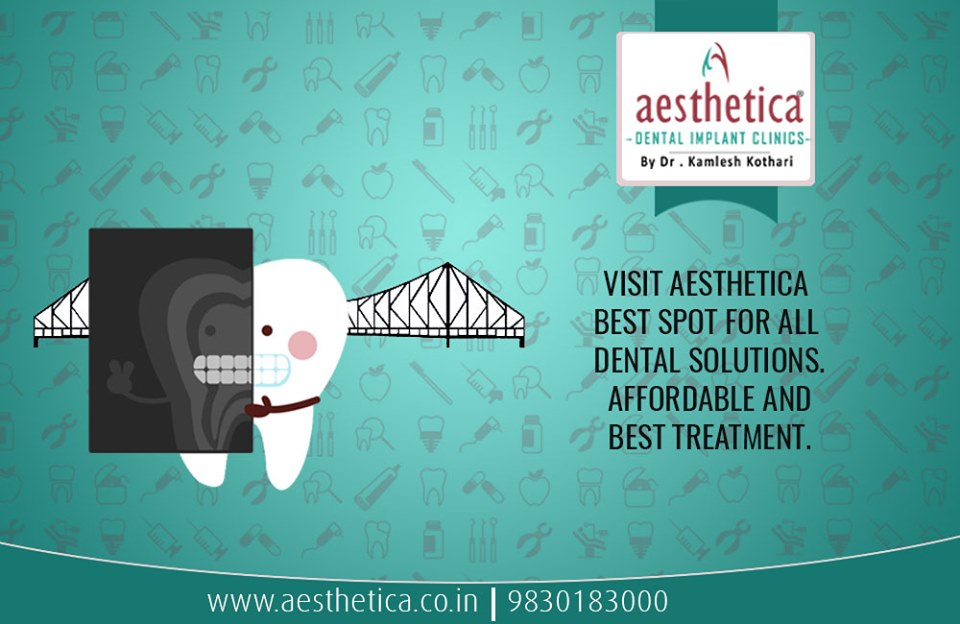 Facts About Bruxism | Aesthetica Dental Implants Clinic