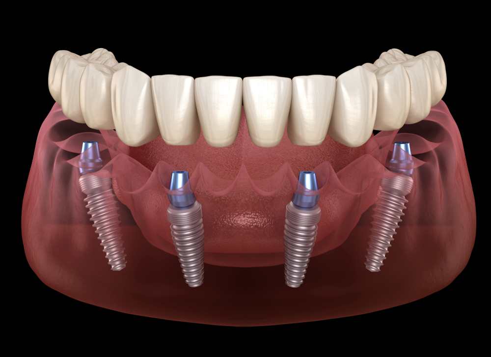 Fix teeth in a day with latest all on 4 Keyhole Dental Implants