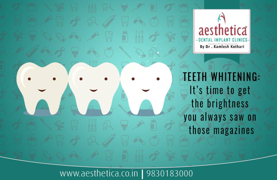 All about teeth whitening in kolkata