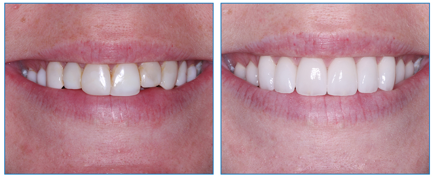 Teeth Straightening Surgery