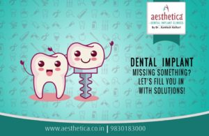 facts about dental implants
