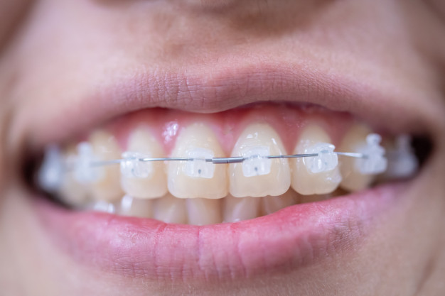 CLEAR BRACES or CERAMIC BRACES
