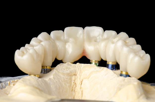 The advantages of zirconia crowns over other types