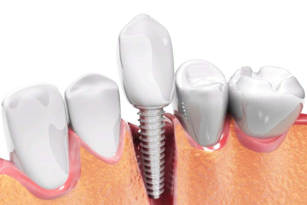 Keyhole Implant