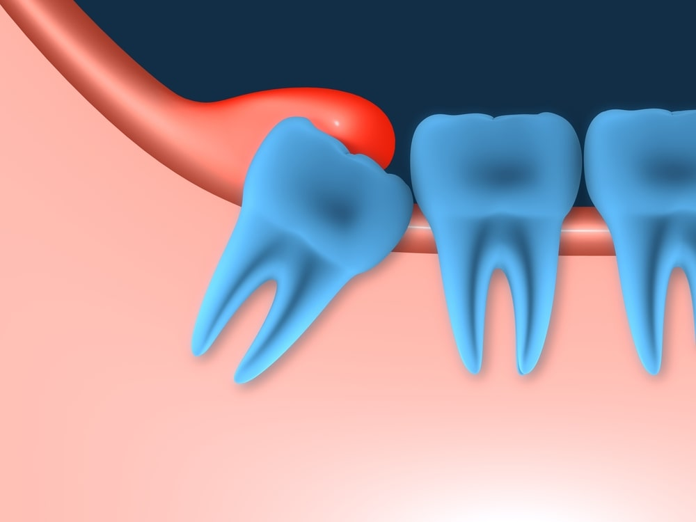 Myths About Wisdom Teeth